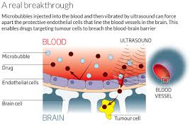 Blood Brain Barrier Anatomy Human Brain U0027s Ultimate Barrier To Open For First Time New Scientist