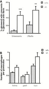 matrix metalloproteinase 9 protects mice from anti u2013glomerular