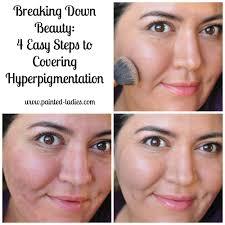 breaking down beauty hyperpigmentation