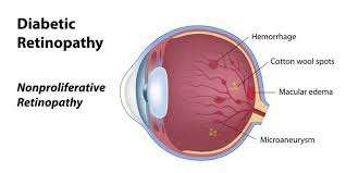 Diabetic Blindness Eye Conditions U2013 Lucent Vision