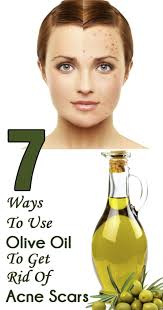 Face Mapping Pimples 10 Easy Ways To Use Olive Oil To Get Rid Of Acne Scars Skin Problems