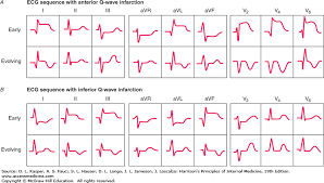 strain pattern ecg meaning electrocardiography harrison s principles of internal medicine