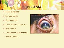 Night Blindness Deficiency Nutrition In Children