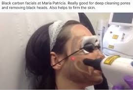 black carbon laser maria patricia laser tattoo removal