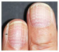 cause of ridges in fingernails u2013 can they be a concern blu