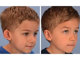 hairstyles to hide ears that stick out ear surgery otoplasty dallas pediatric plastic surgeon