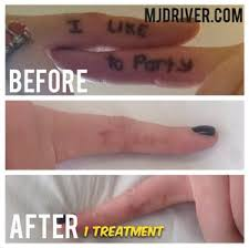 mj driver laser tattoo removal u0026 lightening melbourne in prahran