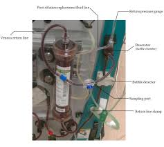 anatomy of the extracorporeal dialysis circuit deranged physiology