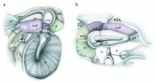 Attic Ear Anatomy Ventilation And Physiopathology Of The Middle Ear Ento Key