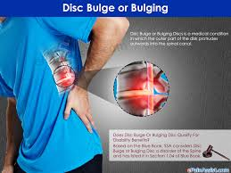 can disc bulge qualify for disability benefits