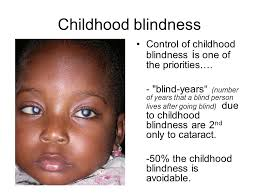 Childhood Blindness Causes Hospital Based Pediatric Eye Services Furahini Godfrey Bsc Ed