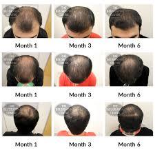 Azelaic Acid Hair Loss Hair Growth Success U0027results Are Amazing U2026 Gave Me Confidence U0027