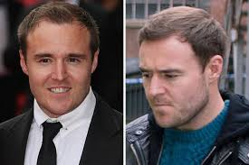 coronation street hair transplants coronation street s alan halsall has undergone a hair transplant