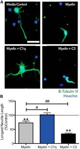 complement protein c1q modulates neurite outgrowth in vitro and
