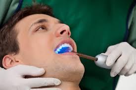 Dentist That Do Teeth Whitening Teeth Whitening Eden Prairie Anderson Lake Dental