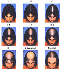 special cuts for women with hairloss female pattern baldness hair loss solutions hairplacenyc