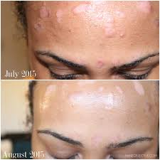 Pumpkin Enzyme Peel Before And After by The Mane Objective Search Results For Psoriasis