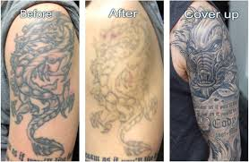 laser tattoo removal 19 things to know icy tales