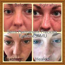 tattoo makeup freckles the controversial freckletattoo showing the stages of healing using
