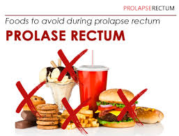 some tips on foods to avoid for rectal prolapse patients