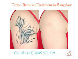 permanent tattoo removal cream in bangalore best tattoo 2017