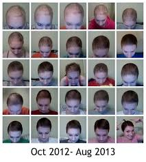 collage my hair growth during after chemo elise cancer chemo