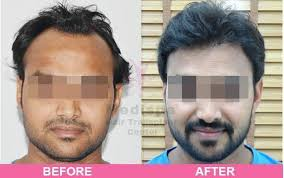 what would be the hair transplant cost in delhi ncr quora