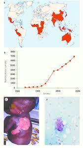 généralités sur l u0027ulcère de buruli a répartition géographique