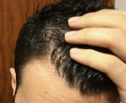 Shoo Hair shoo for hair loss for best hair 2017
