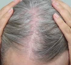 scarring hair loss treatment by dr paul nola