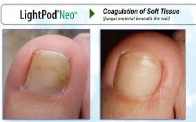 nail fungus polish treatment nails gallery