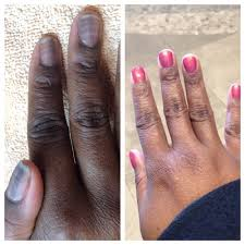 chemo nails before black lines and ridges and after breast