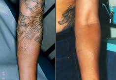 piqo 4 laser before and after before and afters pinterest