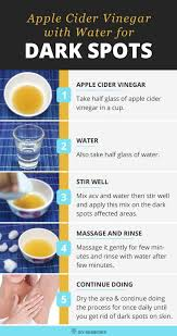 how to use vinegar to get rid of hair dye how to get rid of dark spots using apple cider vinegar