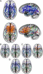 Human Brain Mapping Differences In The Structural Connectome Of The Human Brain