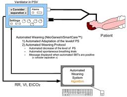 Types Of Ventilators Decision Support Systems In Medicine Anesthesia Critical Care