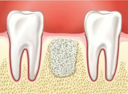 guided bone regeneration dentist bone regeneration