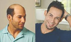 men hair weave pictures men s hair weave for baldness