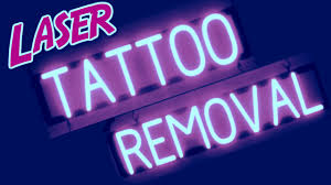 laser tattoo removal raleigh nc picosure tattoo removal pain youtube