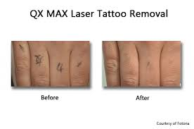 tattoo removal prasad cosmetic surgery new york
