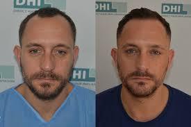 dhi hair transplant reviews news listing page dhi scotland