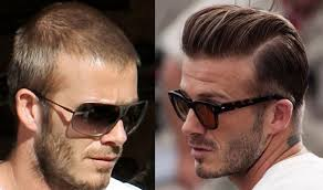 best hairtransplant in the world hair transplant surgery cost results and celebrity cases hold