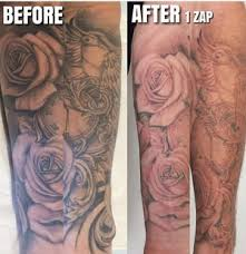 laser tattoo removal clinic west beach the tattoo removal co