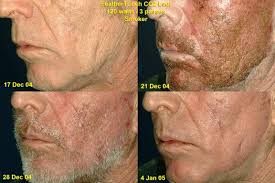 blue light therapy for skin cancer led light treatment clinical pre treatment for surgery cancer