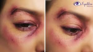 i got punched bruised black eye makeup tutorial by