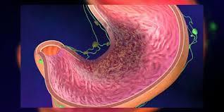 chambre d implantation pour chimio cancer de l estomac les traitements toutes les informations sur
