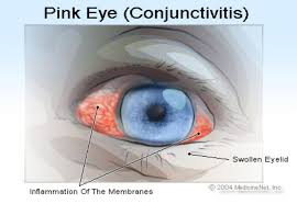 get rid of that pink eye the daily