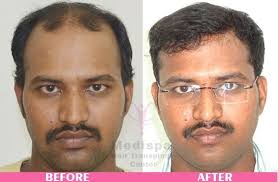 how effective is a hair transplant quora
