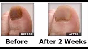 how effective is jublia for toenail fungus pinpointe laser