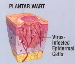 How To Remove Planters Warts by 55 Best Plantar Warts Images On Pinterest Natural Remedies